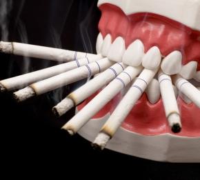 Il fumo di sigaretta come acceleratore  della malattia parodontale. Revisione dellaletteratura
