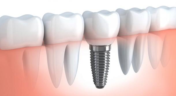 2_implantologia