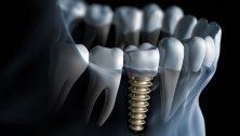 2016-07-29-1469804112-9503073-dentalimplants
