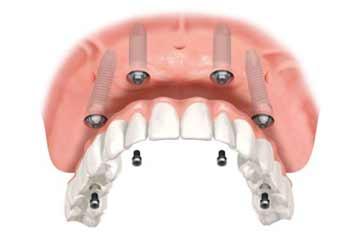 odontoiatria-protesica-2