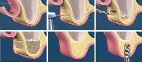 Il pavimento sinusale e l'osteotomia laterale