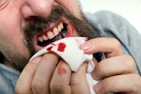 bleeding_gums