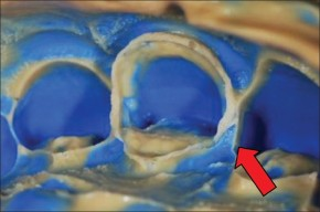 La qualità dell'impronta in protesifissa