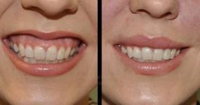 Botox per il trattamento  del sorrisogengivale