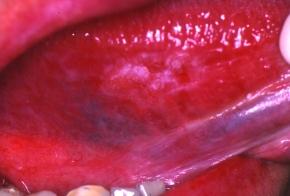 Disordini maligni del cavo orale: quale evidenza per ladiagnosi