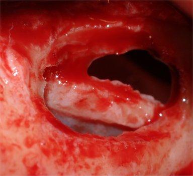 1Grande Rialzo di Seno mascellare_perforazione membrana antrale