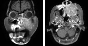 Carcinoma del seno mascellare: il ruolo dell'odontoiatra nellaprevenzione